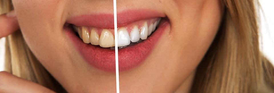 Tooth whitening gel